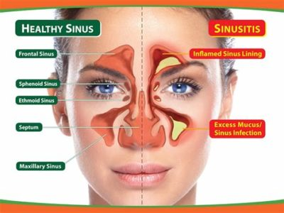 Illustration of Frequent Nasal Congestion After Nasal Fracture Surgery?