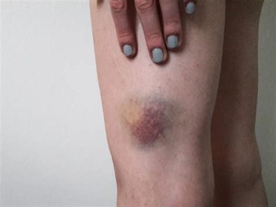 Illustration of The Cause Of The Skin Often Bruises For No Reason?