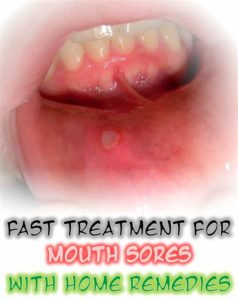 Illustration of Treat Sores In The Mouth Due To An Accident?