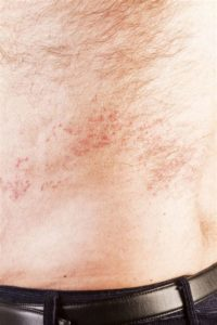 Illustration of The Body Shivers With Aches And Red Bumps Appear Like Boils?