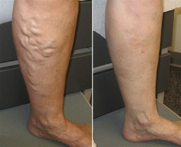 Illustration of The Possibility Of Varicose Veins Will Recur After Varicose Veins Injections?