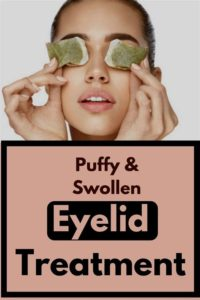 Illustration of Treatment For Swelling In The Eyelids?