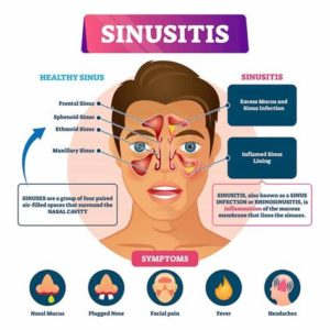 Illustration of Signs And Symptoms Of Recurrent Fistula?