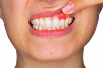 Illustration of Sore Throat, Swollen Gums Bleeding What Are The Symptoms Of HIV?