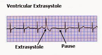 Illustration of Causes Of Pregnancy With VES (extra Ventricular Systole) Bigemini?