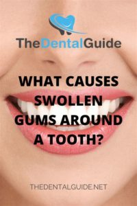 Illustration of Swelling Under The Nose And Incisor Gums?