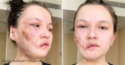 Illustration of Plastic Surgery For 17 Year Olds?