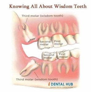 Illustration of Back Molar Toothache But No Cavities?