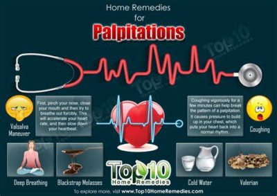 Illustration of Causes And Treats Heart Palpitations?