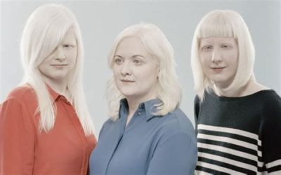 Illustration of It Is Possible That Albinism Can Be Passed From Parents To Children?