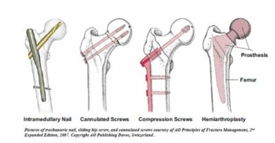 Illustration of Treatment Of Hip And Thigh Fractures Due To Accidents?