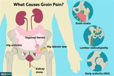 Illustration of Causes And Treats Groin Pain?
