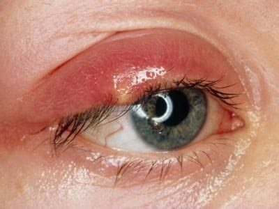 Illustration of A Pus-filled Lump In The Upper Left Eye?
