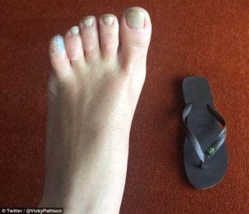 Illustration of Swollen Little Toe After Being Run Over By A Car?