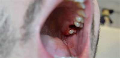 Illustration of Blood Clot After Tooth Extraction?