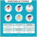 Early Signs And Symptoms Of Typhoid?