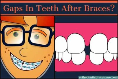 Illustration of Why Are Teeth Still Uneven Even After Wearing Braces?
