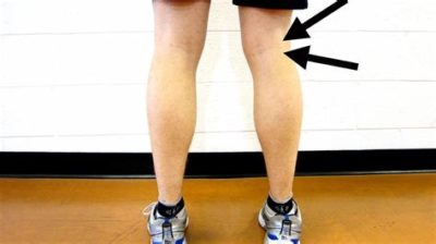 Illustration of A Fluid Filled Lump Appears On The Thigh After Surgery?