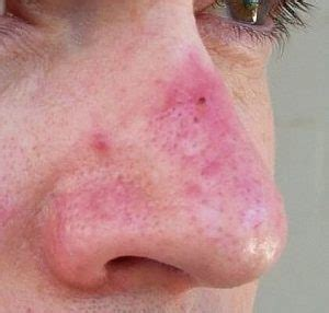 Illustration of The Bump On The Tip Of The Nose Feels Dry And Itchy?