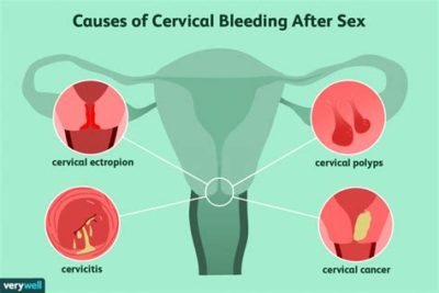 Illustration of Bleeding From The Vagina After Intercourse With The Woman's Position Above?
