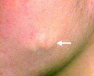Illustration of There Is A Lump On The Upper Side Of The Throat?