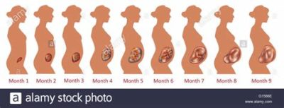 Illustration of The Fetus Does Not Move At 9 Months Of Pregnancy?