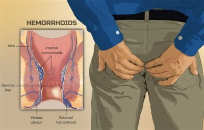 Illustration of Pain In The Rectum With A History Of Hemorrhoids?