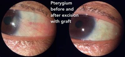 Illustration of How Long Does It Take To Heal After Pterygium Surgery?