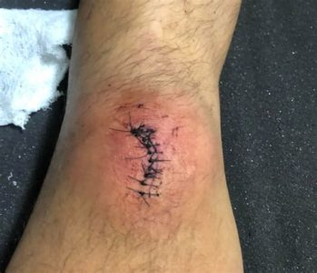 Illustration of What Happens If The Sutures In The Surgical Wound Are Untied?