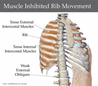 Illustration of Back Rib Pain From Falling In The Bathroom?