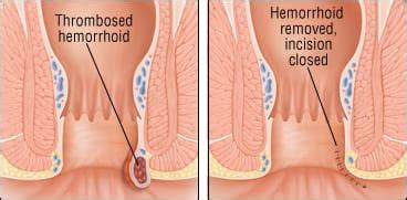 Illustration of Lump In The Anus After Hemorrhoid Surgery Has Been 2 Weeks?