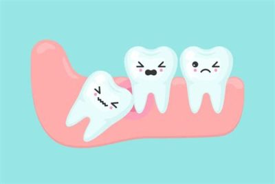 Illustration of Can't Open Mouth After Dental Surgery?