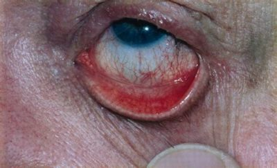 Illustration of The Membrane On The Surface Of The Eyeball Is Accompanied By A Feeling Of Lump?