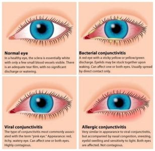 Illustration of Causes Of Itchy Eyes In The Morning?