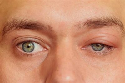 Illustration of Swollen Eyes Caused By Insects?