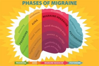 Illustration of Causes And Treats Migraine With Aura?