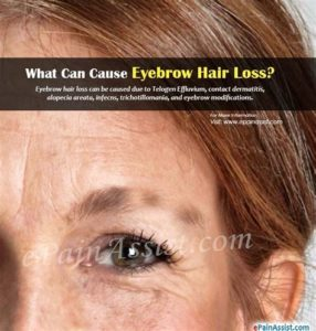 Illustration of Causes And Treats Eyebrows That Fall Out Easily?