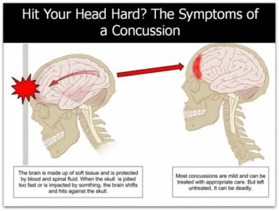 Illustration of Head Hurts After Falling And Hitting The Back Of The Head?